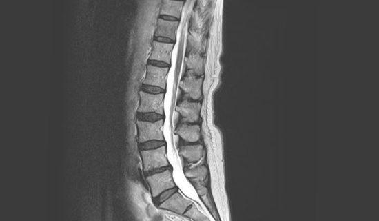 脊椎MRI:しびれ